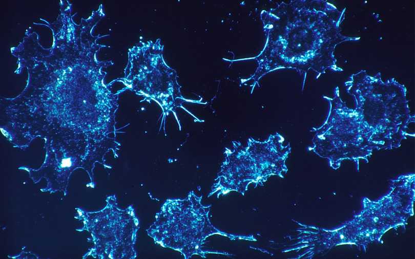 New York University's AI tool can tell cancer type, spot mutated genes
